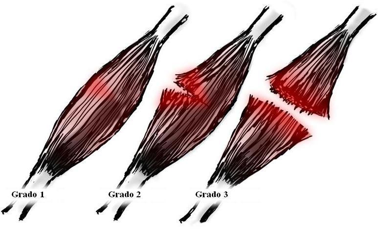 Grados de rotura fibrilar