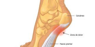 La fascitis plantar, una lesión habitual en el pádel